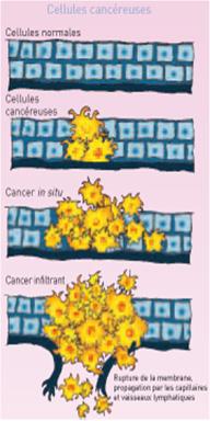cancer du sein type 2
